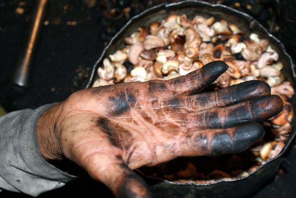 Com a pele cada vez mais lisa, as pontas dos dedos perdem as digitais, e as linhas e traços de identidade se esfacelam. Fotos Daniel Santini/Repórter Brasil