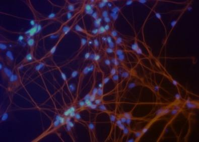 Segundo os autores do estudo, divulgado na revista Scientific Reports, o material poderá ser usado em terapia, desenvolvimento de novos medicamentos e estudos de doenças (imagem: neurônios derivados das células-tronco pluripotentes (núcleos em azul))